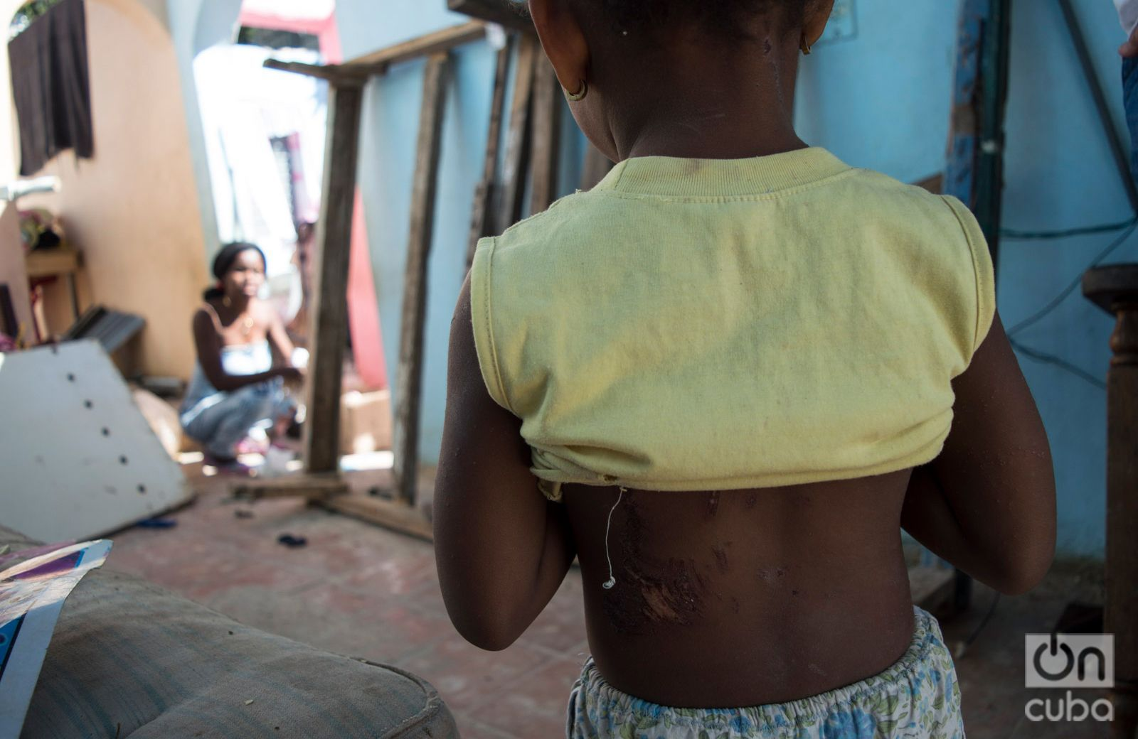 Three-year-old Emilenys shows the scars on her back, as her mother looks on. Photo: Otmaro Rodríguez.
