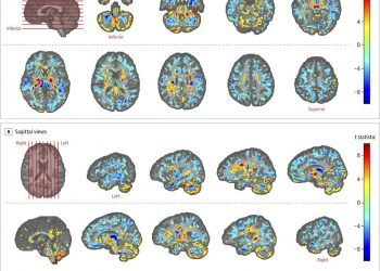 Photo of various brain scans of U.S. officials who were in Cuba, compared to those of a control group, in a photo provided by the American Medical Association in July 2019. (American Medical Association via AP)