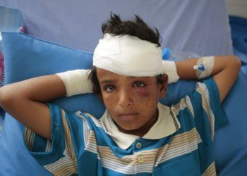 Fotografía de archivo del 12 de agosto de 2018 de un niño lesionado en un ataque aéreo de la coalición liderada por Arabia Saudí en un hospital en Sadá, Yemen. (AP Foto/Hani Mohammed, archivo)