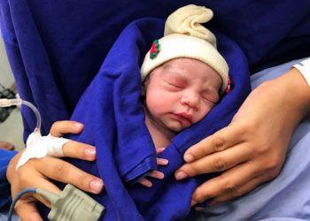 Esta fotografía del 15 de diciembre de 2017 proporcionada por el médico Wellington Andraus muestra a la bebé que nació de una mujer que recibió un trasplante de útero de una donante fallecida en Sao Paulo, Brasil. (Cortesía del doctor Wellington Andraus vía AP)