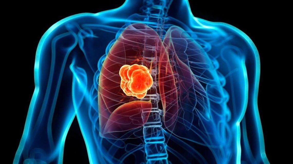 Un 85 por ciento de las personas portadoras de cáncer de pulmón son diagnosticadas en una fase avanzada de la enfermedad, y su esperanza de vida se reduce a uno o dos años.