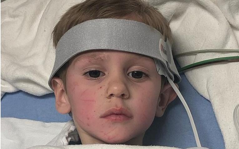 El niño durante su recuperación en el hospital.