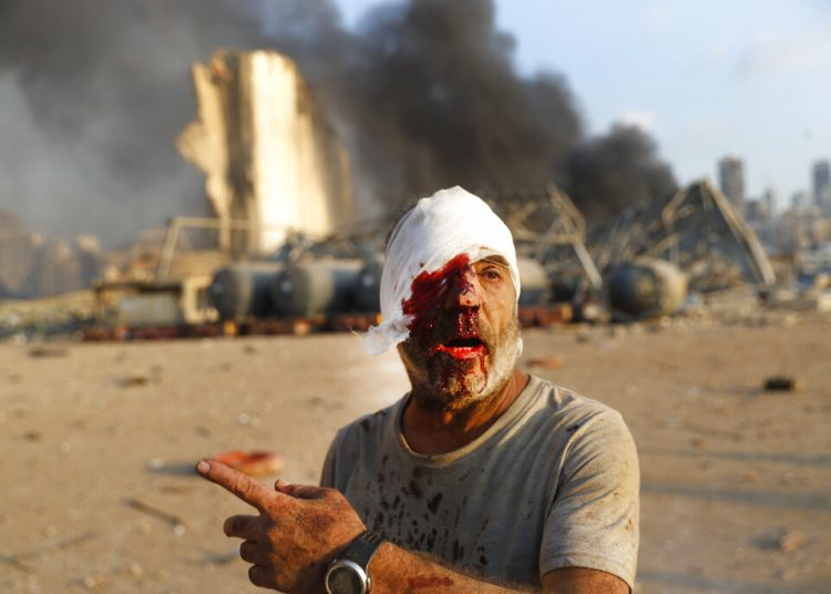 Un hombre herido se aleja del lugar de una explosión en Beirut, Líbano, el martes 4 de agosto de 2020. Foto: Hussein Malla/AP.