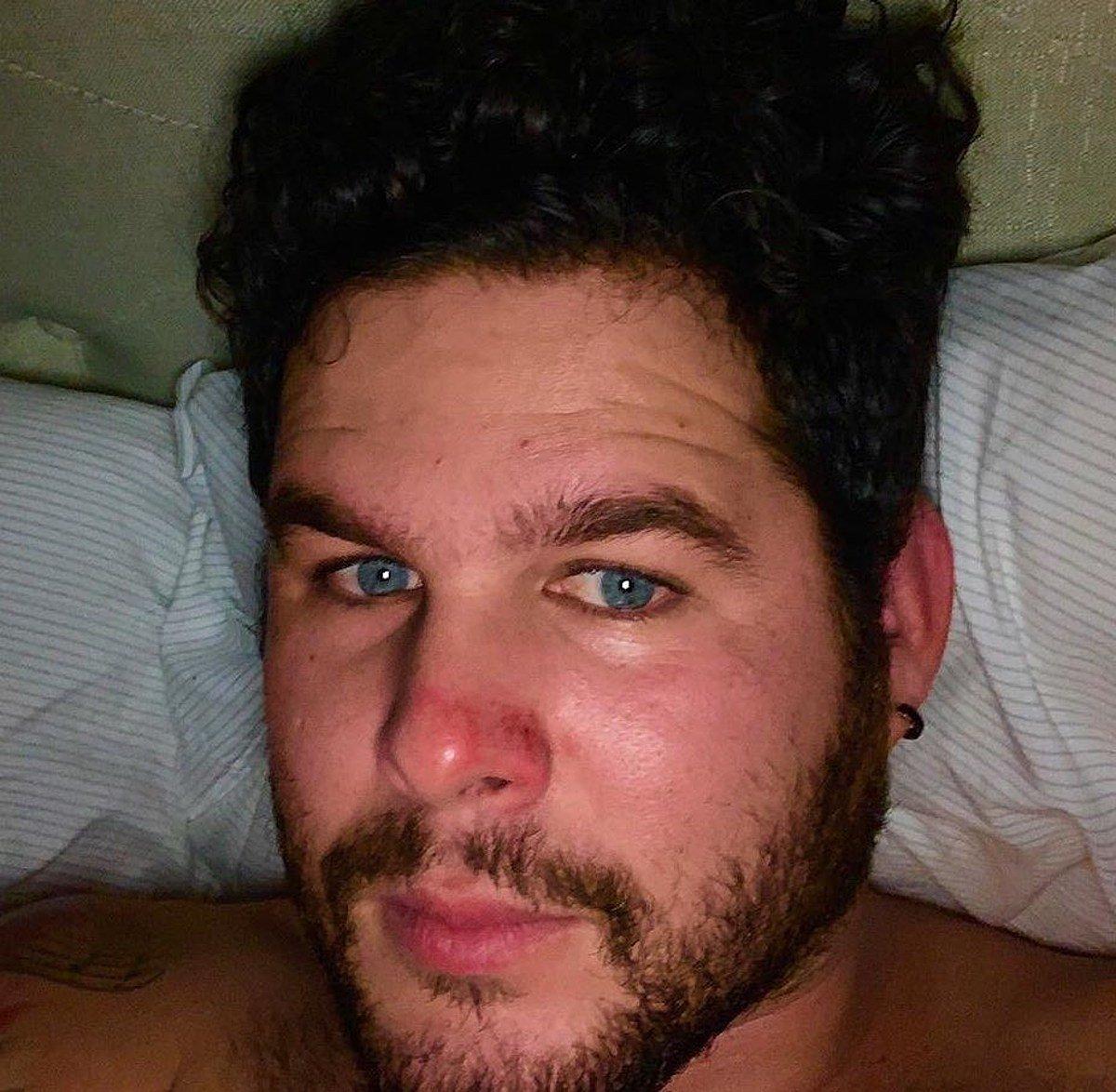 El músico cubano Lorenzo Molina tras la agresión sufrida en un bar de Tennessee, EE.UU., al parecer por hablar en español con un amigo. Foto: Facebook de Lorenzo Molina.