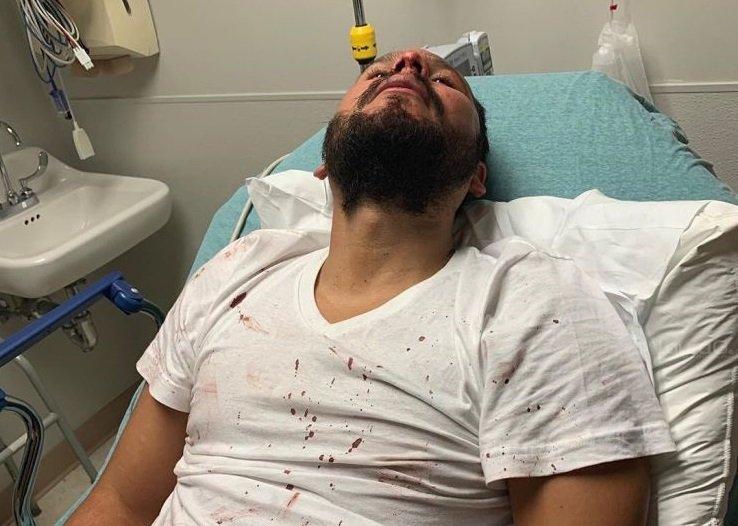 """El músico cubano Orlando Morales tras ser agredido junto a su amigo Lorenzo Molina en un bar de Tennessee, EE.UU., tras hablar entre ellos español, por lo que califican el hecho como """"un crimen de odio"""". Foto: Facebook de Lorenzo Molina."""
