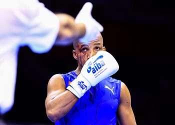 Roniel Iglesias perdió por decisión de los jueces tras sufrir un corte en el rostro en el primer asalto. Foto: insidethegames.biz